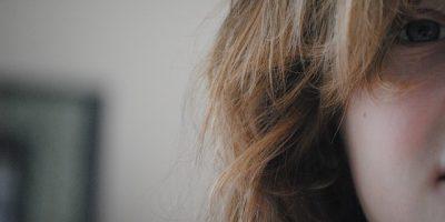 Rambut Rontok
