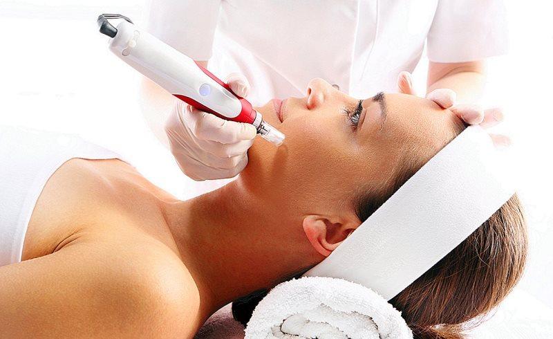 Mesoterapi - 7 Pilihan Perawatan Wajah di Salon yang Cocok untuk Pemula